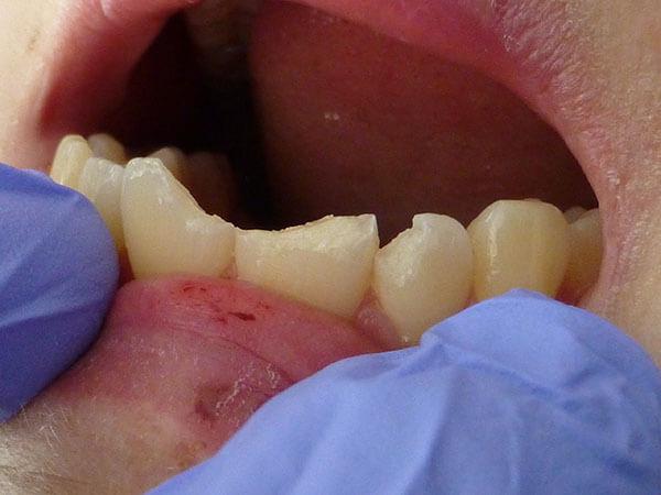 Estetyczna odbudowa zęba - Stomatologia Wilczek Tarnowskie Góry - zdjęcie przed odbudową