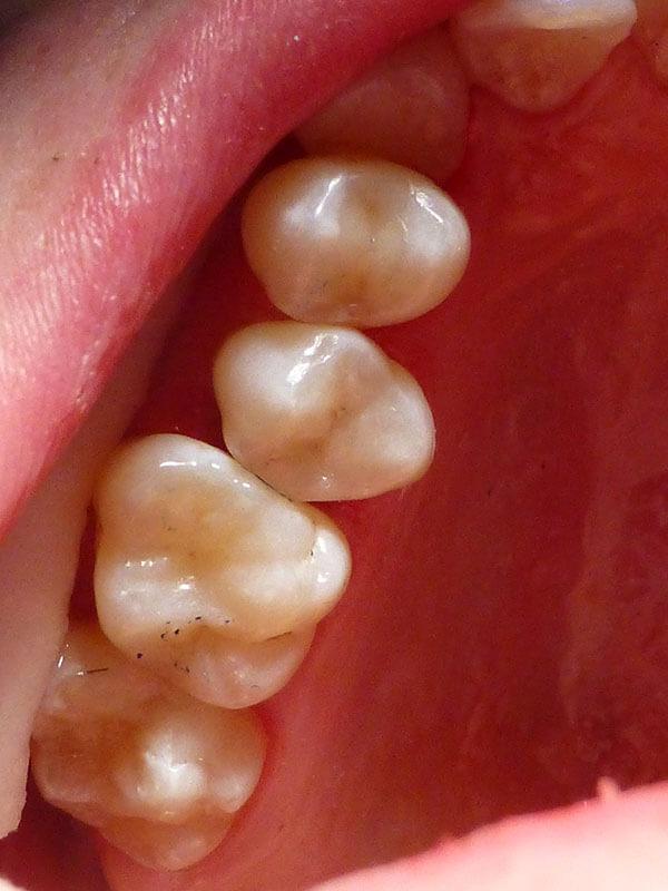 Estetyczna odbudowa zęba - Stomatologia Wilczek Tarnowskie Góry - efekt po