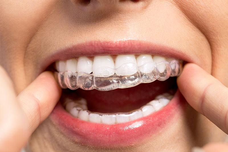 Kobieta zakłada na zęby przezroczysty aparat ortodontyczny