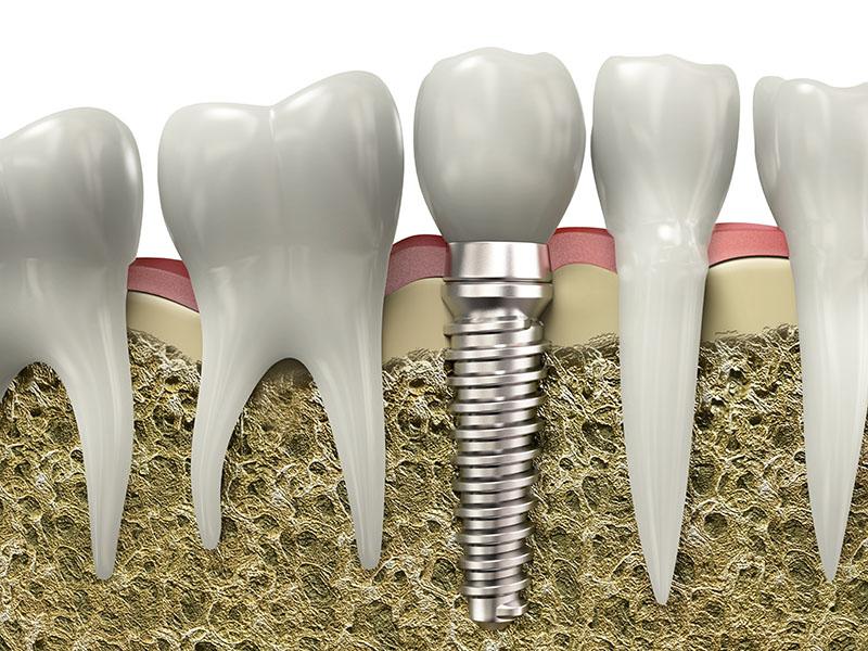 Wstawiony Implant zęba - przekrój szczęki