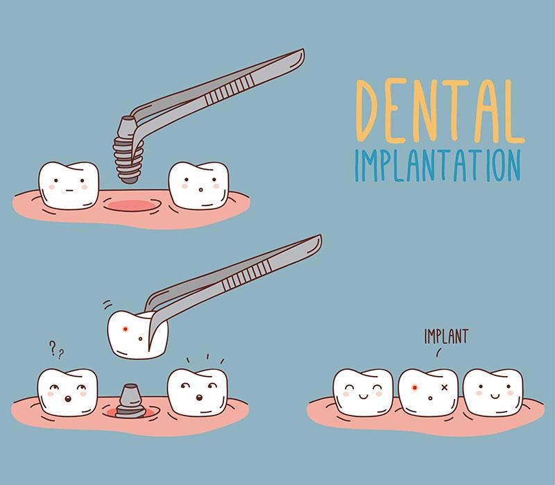 Implanty zębowe - komiks z prezentacją zakładania implantu